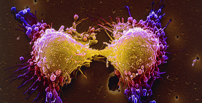 Cancer Cells - science