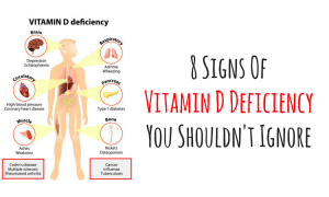 vitamin d 300x180 - curious