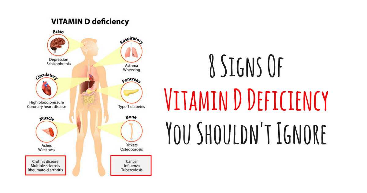 8 Signs Of Vitamin D Deficiency You Shouldn't Ignore. Puasa Banners. Slogan Signs Of Stroke. Order Printed Labels. Chart Banners. Men Signs Of Stroke. Xr 250 Decals. Tern Logo. Littering Lettering