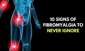 10 Signs Of Fibromyalgia To Never Ignore 300x180 - health