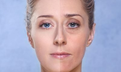 Evening Baggy Eye Solution To Get Rid Of Puffiness FAST 400x240 - health