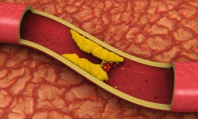 a clogged artery 400x240 - health
