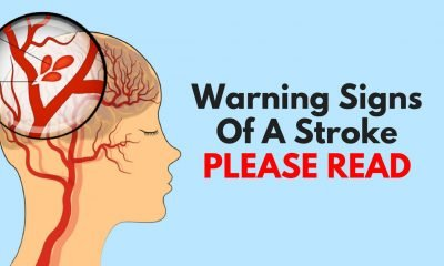 Warning Signs Of A Stroke 400x240 - health