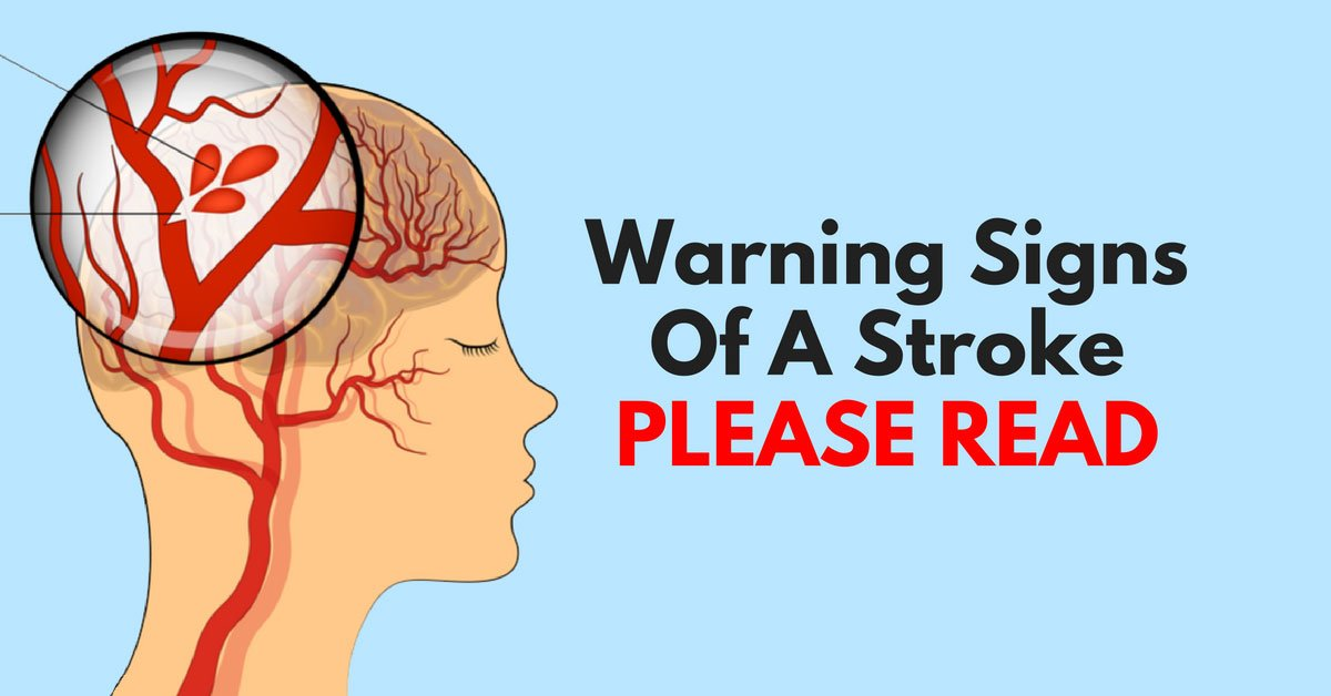 Warning Signs Of A Stroke - health