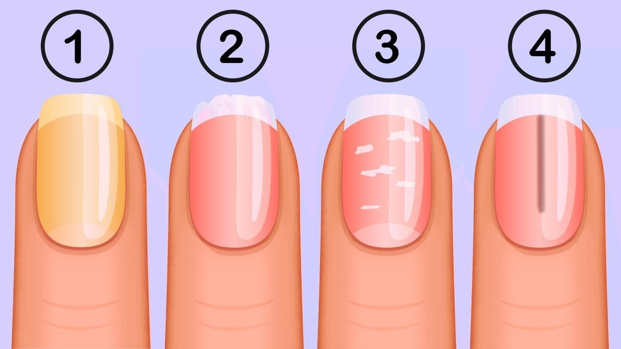 8 Nail Symptoms and What They Mean for Your Health